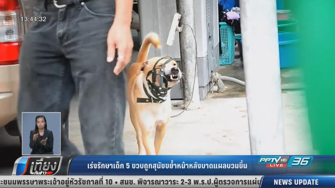 เร่งรักษาเด็ก 5 ขวบถูกสุนัขขย้ำหน้าหลังบาดแผลบวมขึ้น