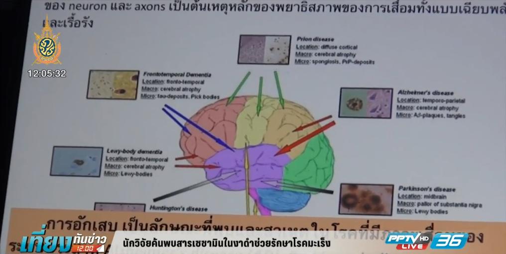 นักวิจัยค้นพบสารเซซามินในงาดำช่วยรักษาโรคมะเร็ง