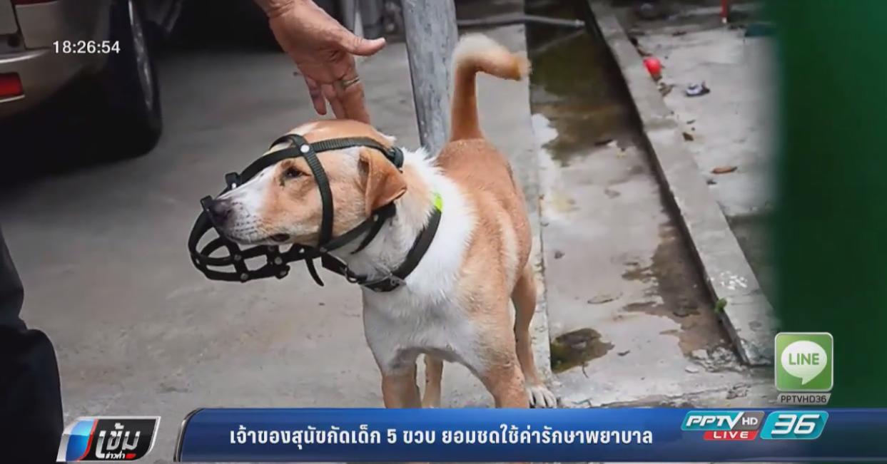 เจ้าของสุนัขกัดเด็ก 5 ขวบ ยอมชดใช้ค่ารักษาพยาบาล