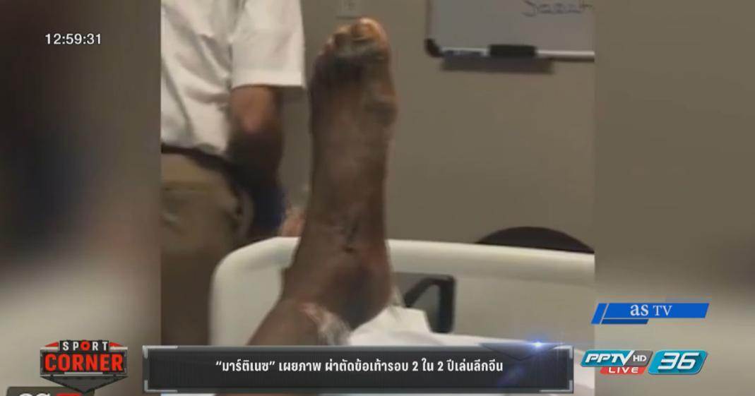 """""""มาร์ติเนซ"""" เผยภาพผ่าตัดข้อเท้ารอบ 2 ใน 2 ปีเล่นลีกจีน"""