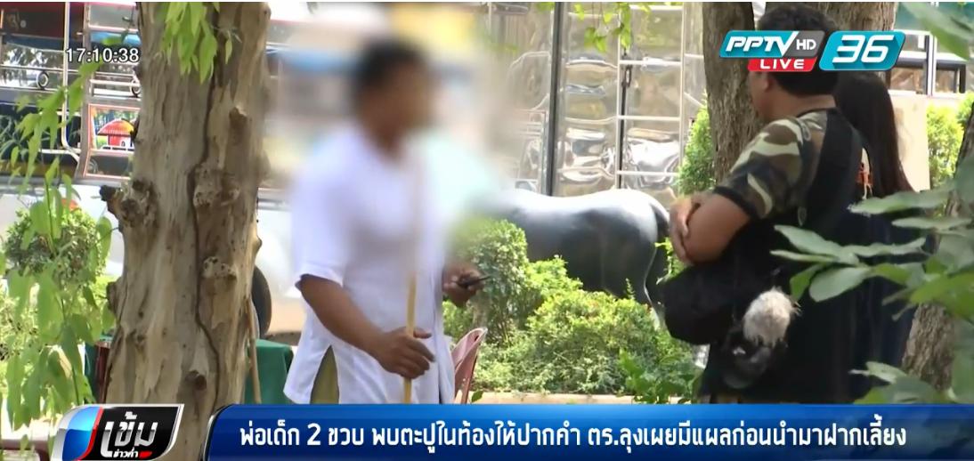 พ่อเด็ก 2 ขวบพบตะปูในท้อง ให้ปากคำตำรวจเพิ่มเติม
