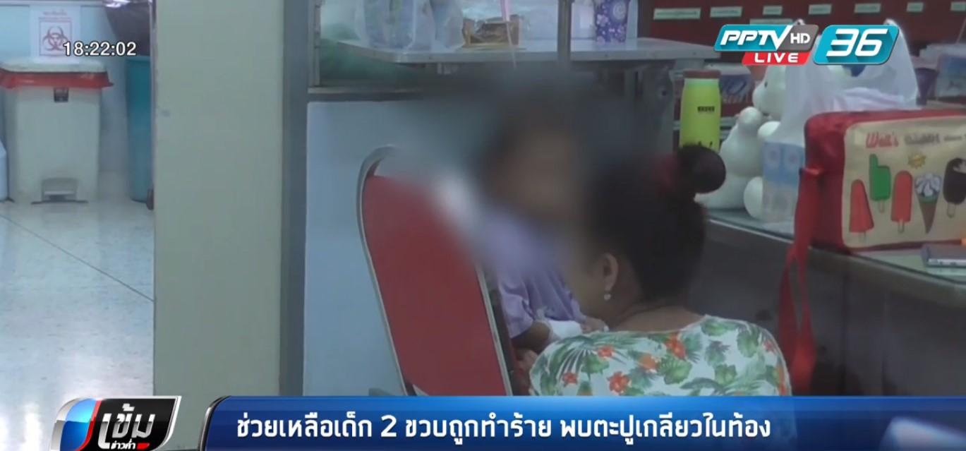 ช่วยเหลือเด็ก 2 ขวบถูกทำร้าย พบตะปูเกลียวในท้อง