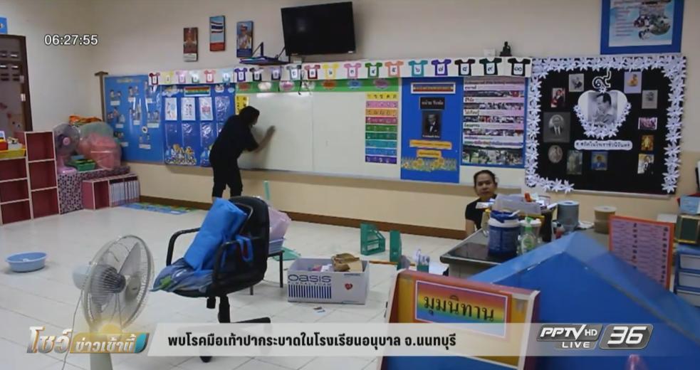 พบโรคมือเท้าปากระบาดในโรงเรียนอนุบาล จ.นนทบุรี