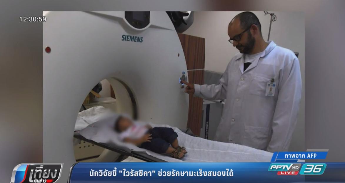 """นักวิทย์สหรัฐฯชี้ """"ไวรัสซิกา"""" สามารถรักษามะเร็งสมองได้"""