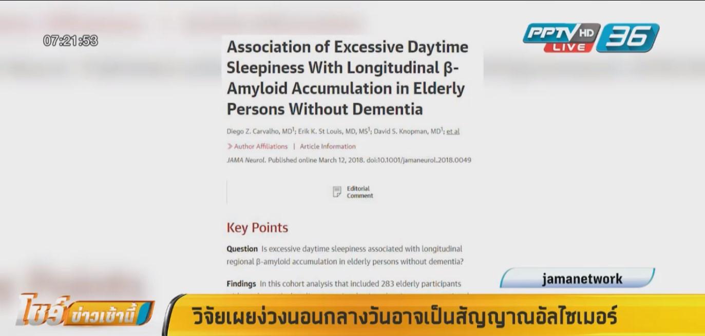 """งานวิจัยสหรัฐฯเผย ง่วงนอนกลางวันอาจเป็นสัญญาณ """"อัลไซเมอร์"""""""