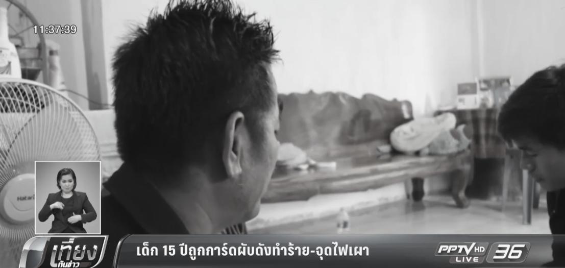 เด็ก 15 ปีถูกการ์ดผับดังทำร้าย-จุดไฟเผาบาดเจ็บสาหัส