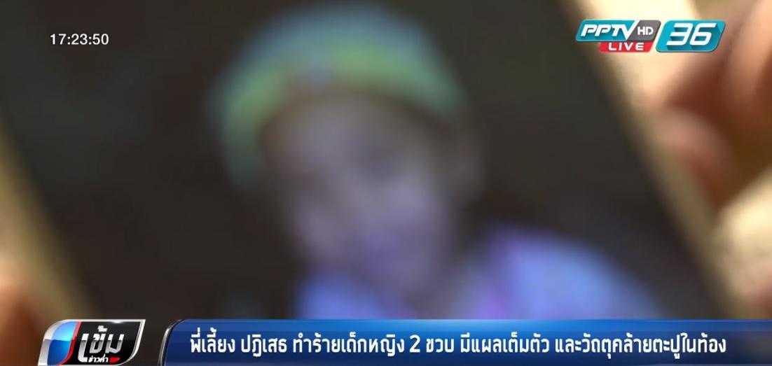 พี่เลี้ยง ปฏิเสธ ทำร้ายเด็กหญิง 2 ขวบ มีแผลเต็มตัว และวัถตุคล้ายตะปูในท้อง