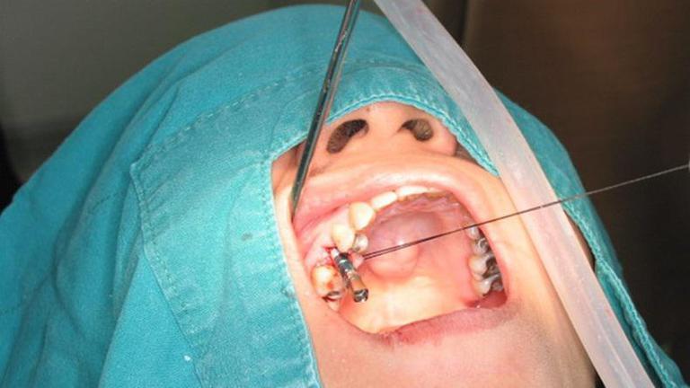 สธ - สปสช. ทุ่มงบ 12 ล้าน ใส่ฟันเทียมให้ผู้สูงอายุ