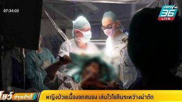 หญิงป่วยเนื้องอกสมอง เล่นไวโอลินระหว่างผ่าตัด