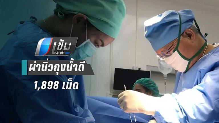 หมอผ่านิ่วถุงน้ำดี 1,898 เม็ด เผยคนอีสานป่วยมากที่สุด