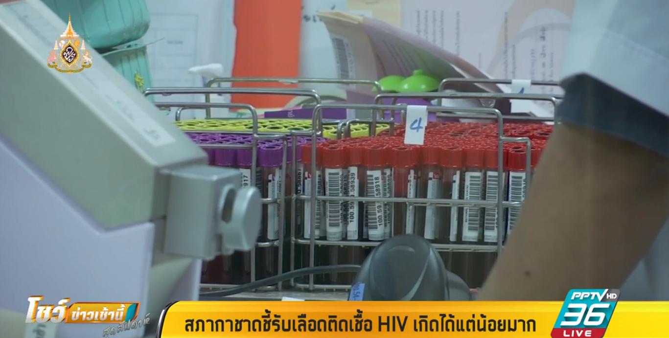 สภากาชาด ชี้รับเลือดติดเชื้อ HIV เกิดขึ้นได้ แต่มีน้อยมาก