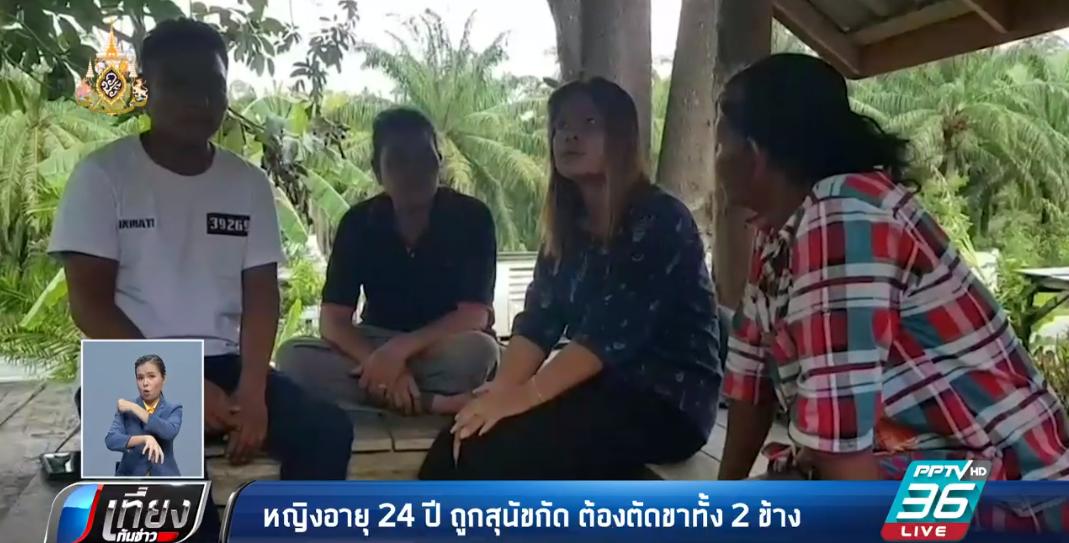 หญิงอายุ 24 ปี ถูกสุนัขกัด ต้องตัดขาทั้ง 2 ข้าง