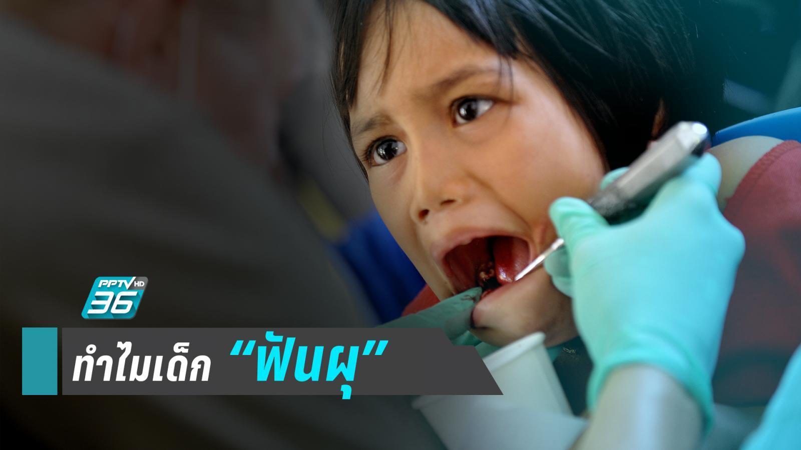 """""""เด็ก 3 ขวบฟันผุ"""" อุทาหรณ์สอนพ่อแม่ต้อง """"ดูแลฟันตั้งแต่ซี่แรกที่ขึ้น"""""""
