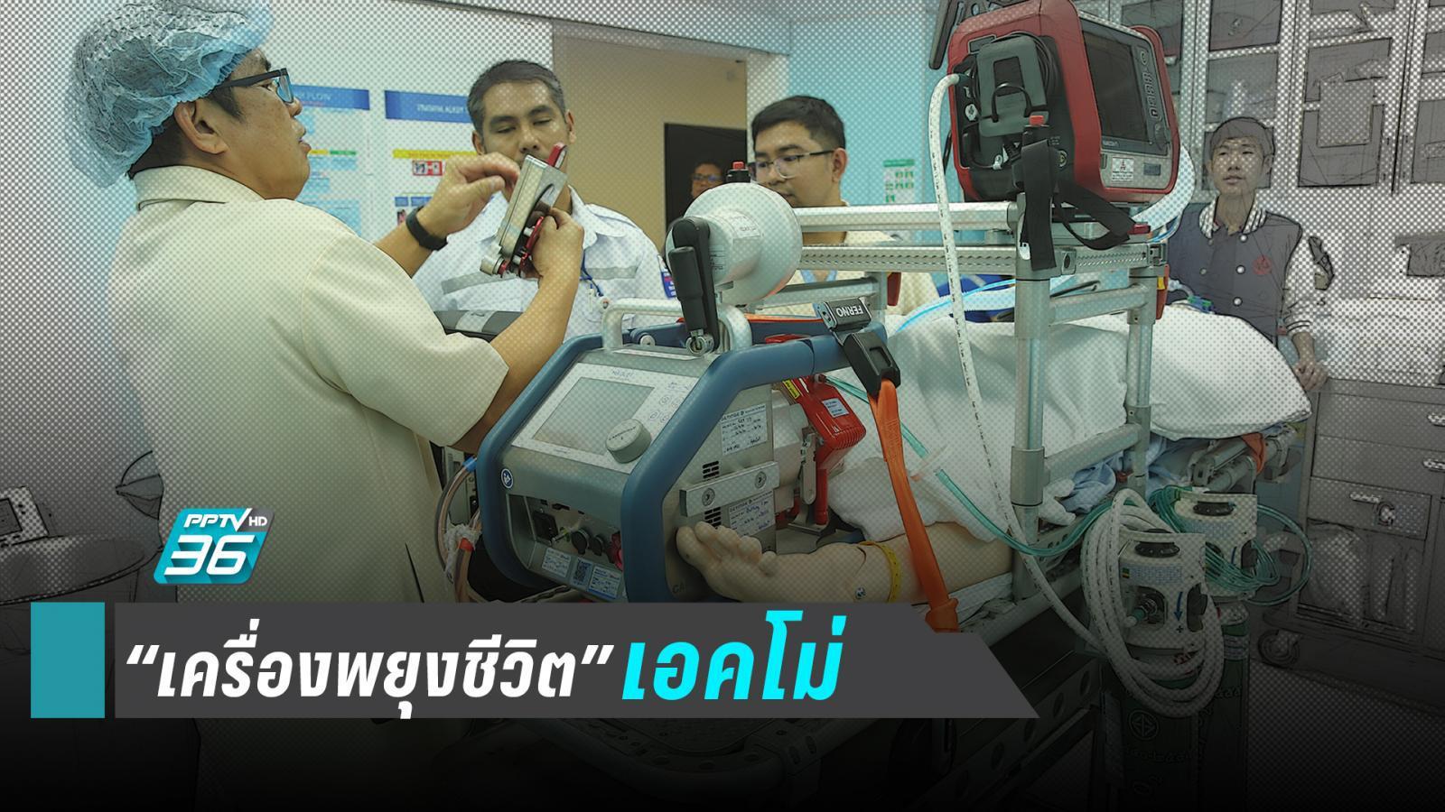 """รู้จัก """"เครื่องเอคโม่"""" ปอด-หัวใจ เทียมพยุงชีวิตตลอดเส้นทางการย้ายผู้ป่วย"""