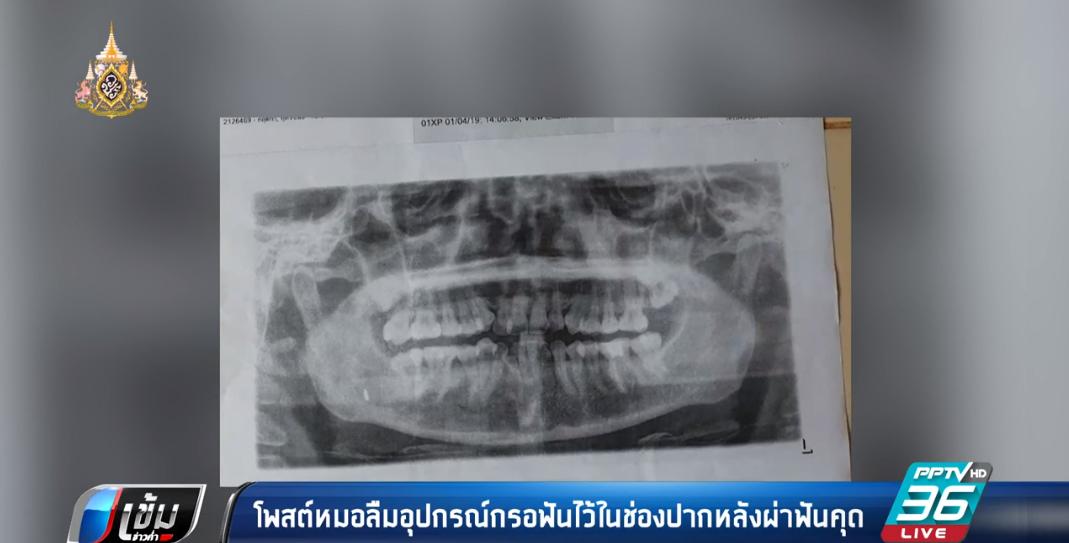หมอลืมอุปกรณ์กรอฟันหลังผ่าฟันคุด