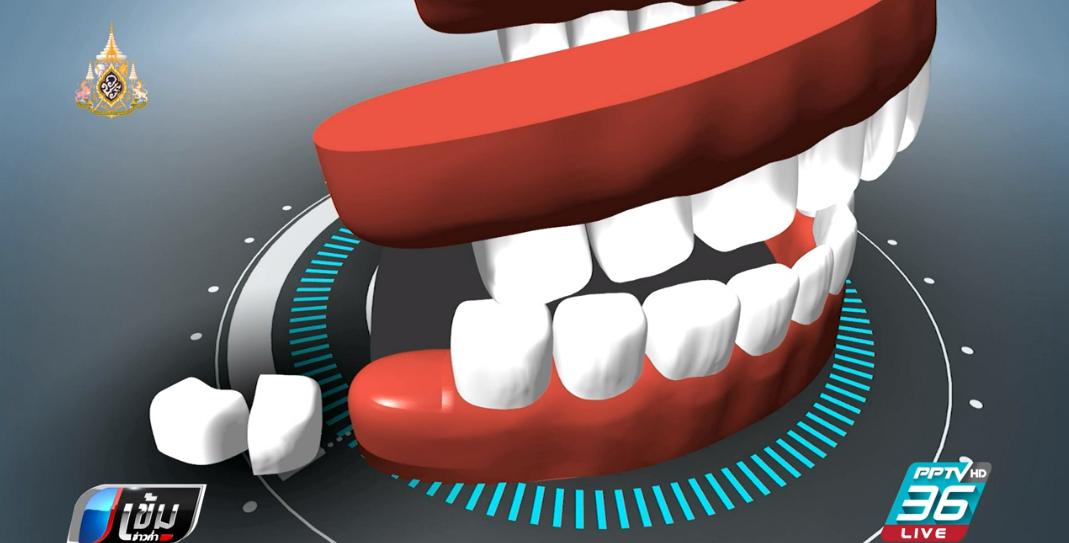 เร่งสอบหมอลืมอุปกรณ์ทำฟัน 4 ปี ในช่องปาก