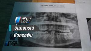 ผอ.รพ.ตากใบ แจง กรณีหัวกรอฟัน หลุดเข้าไปในเหงือก