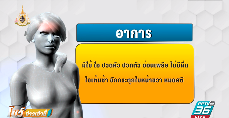 """พบผู้ป่วย""""โรคลายม์""""รายแรกในไทย รักษาหาย แต่จำเหตุการณ์ย้อนหลังไม่ได้"""