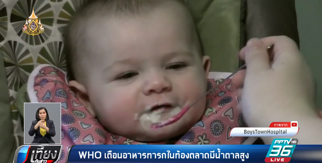 องค์การอนามัยโลก เตือนอาหารทารกในท้องตลาด มีน้ำตาลสูง!