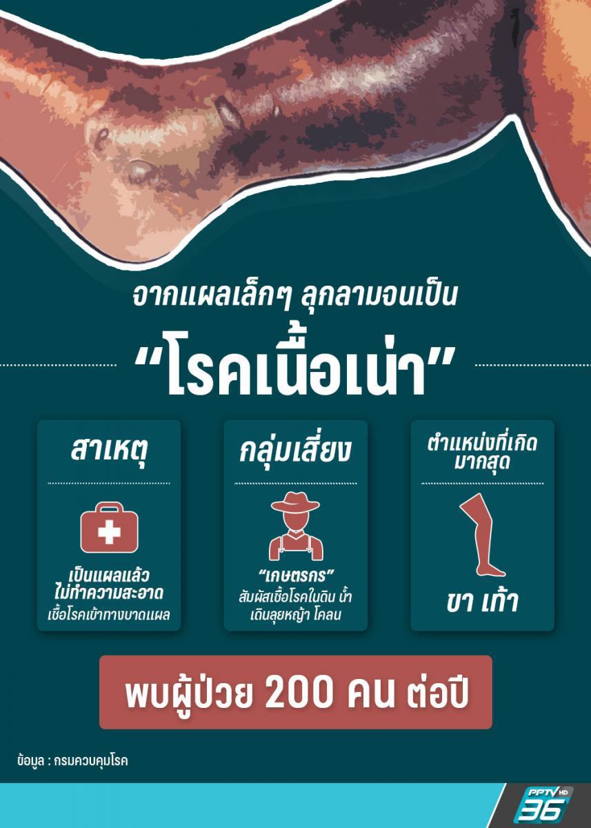 """""""ยาฆ่าหญ้า-ฆ่าแมลง"""" ตัวการโรคเนื้อเน่า พร้อม 5 วิธีเบื้องต้น หากเป็นแผล"""