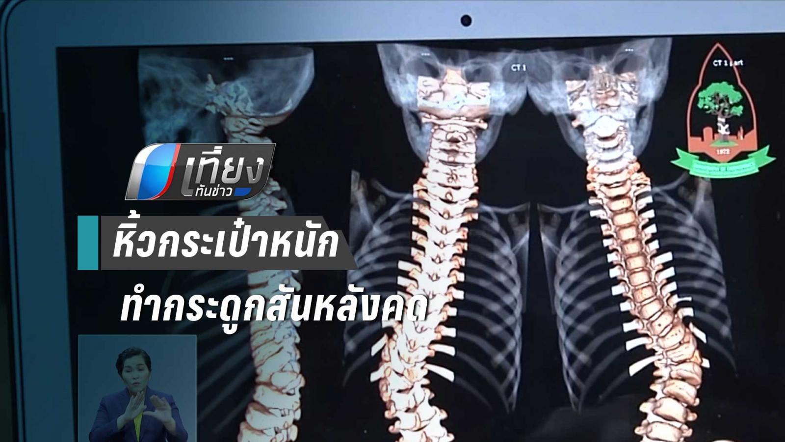 แพทย์ชี้หิ้วกระเป๋าหนักไม่ใช่สาเหตุกระดูกสันหลังคด