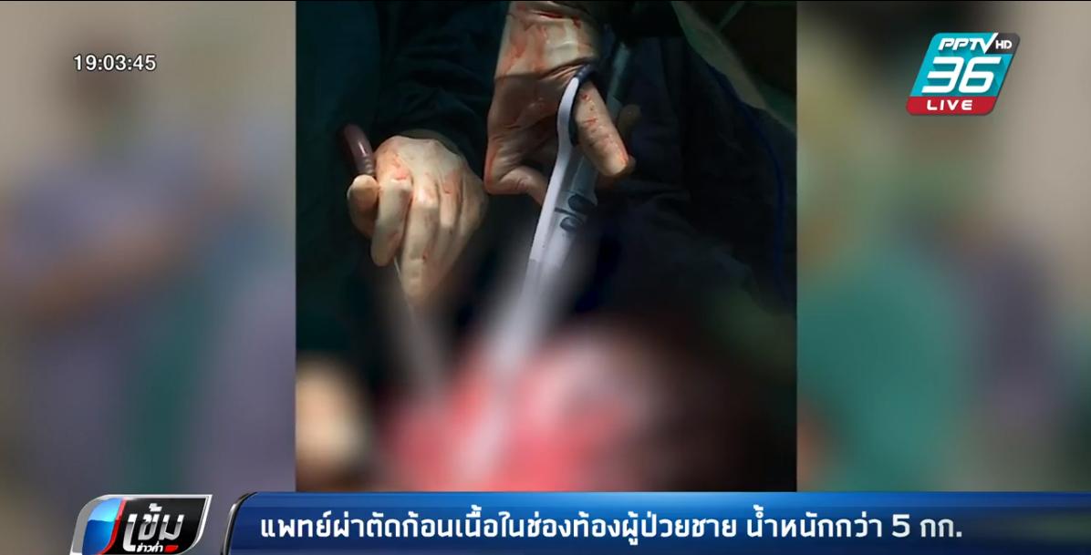 แพทย์ผ่าตัดก้อนเนื้อในช่องท้องผู้ป่วยชาย น้ำหนัก 5 กก.