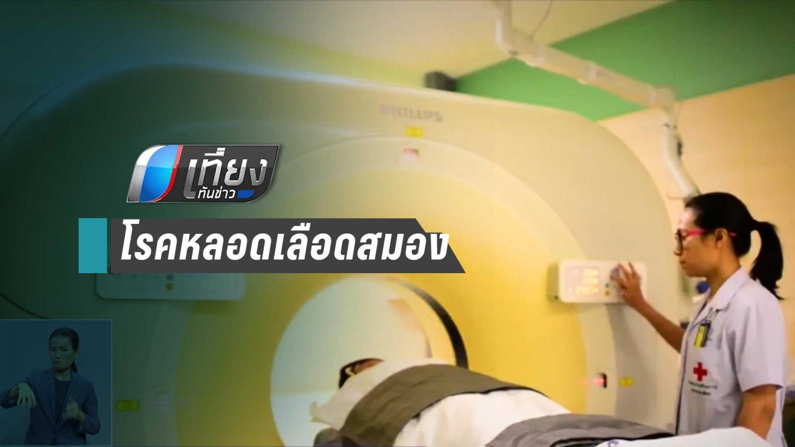 6 วินาที โลกเสียชีวิต 1 คน โรคหลอดเลือดสมอง