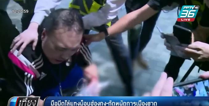 มือมีดไล่แทงม็อบฮ่องกง-กัดหูนักการเมืองขาด