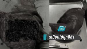 แพทย์ ผ่าถุงน้ำดี พบก้อนนิ่วเหมือนไข่มุกสีดำกว่า 800 ก้อน