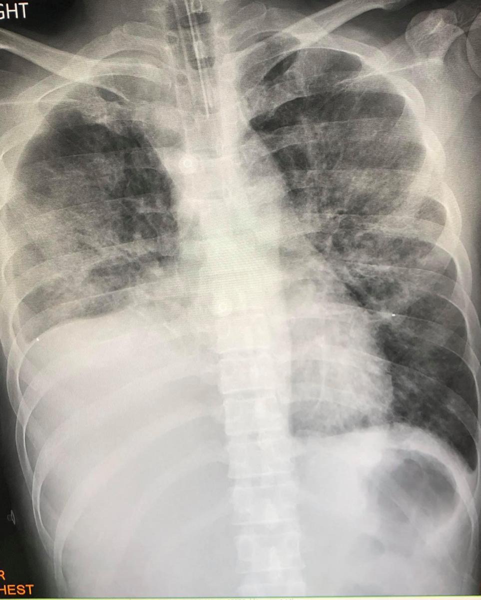ผู้ป่วยไทยรายแรก ปอดอักเสบ เหตุสูบสารกัญชา ด้วยบุหรี่ไฟฟ้า
