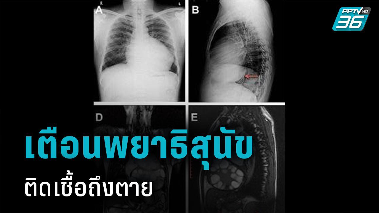 ระวัง! หายใจลำบาก อาจเกิดจากพยาธิในสุนัข 'แพทย์มทส.' เปิดเคสติดเชื้อ คร่าชีวิตทั่วโลก