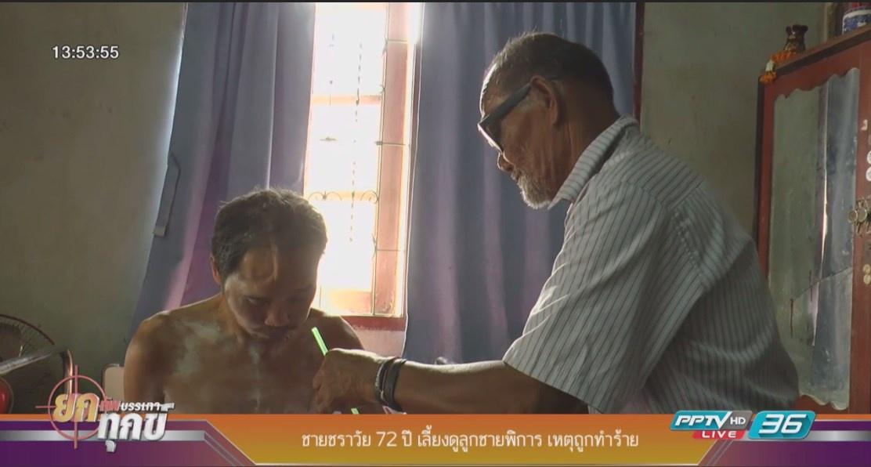 ชายชราวัย 72 ปี เลี้ยงดูลูกชายพิการ เหตุถูกทำร้าย