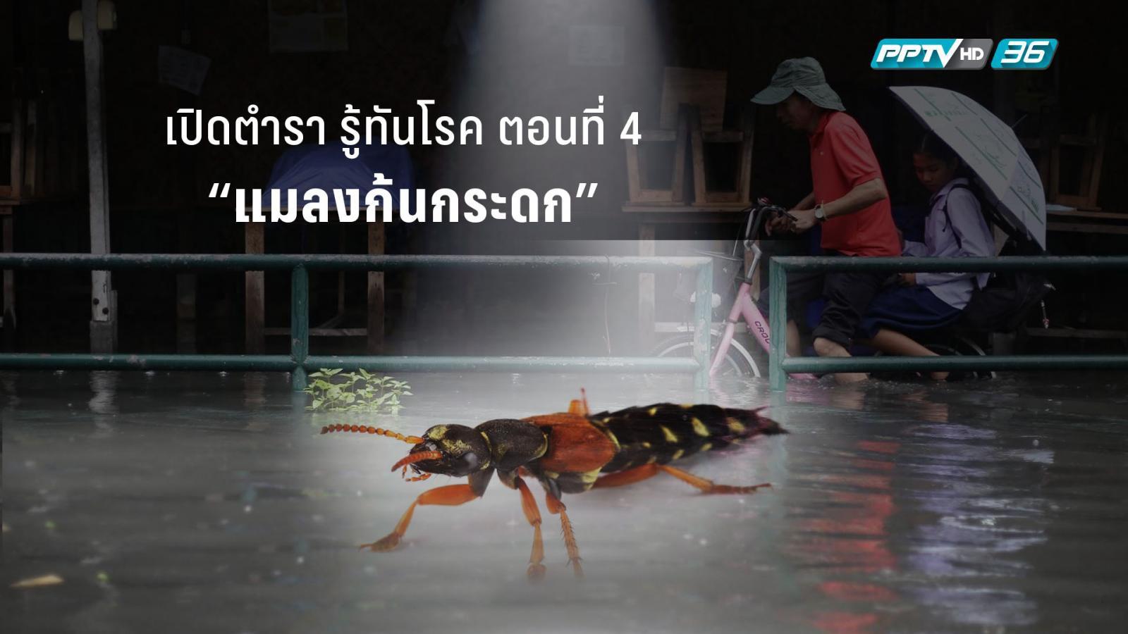 """เปิดตำรา รู้ทันโรค ตอนที่ 4 """"แมลงก้นกระดก"""" สัตว์อันตรายที่ป้องกันได้"""