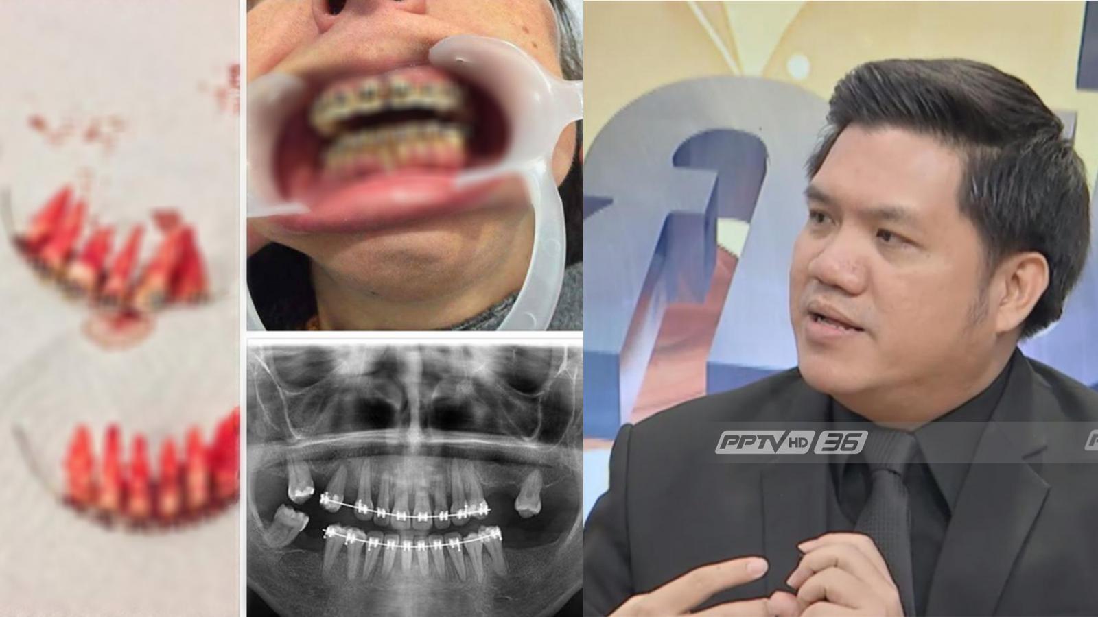 หลุดยกแผง! จัดฟันเถื่อนสวยในความเสี่ยง ทนายแนะช่องเอาผิด