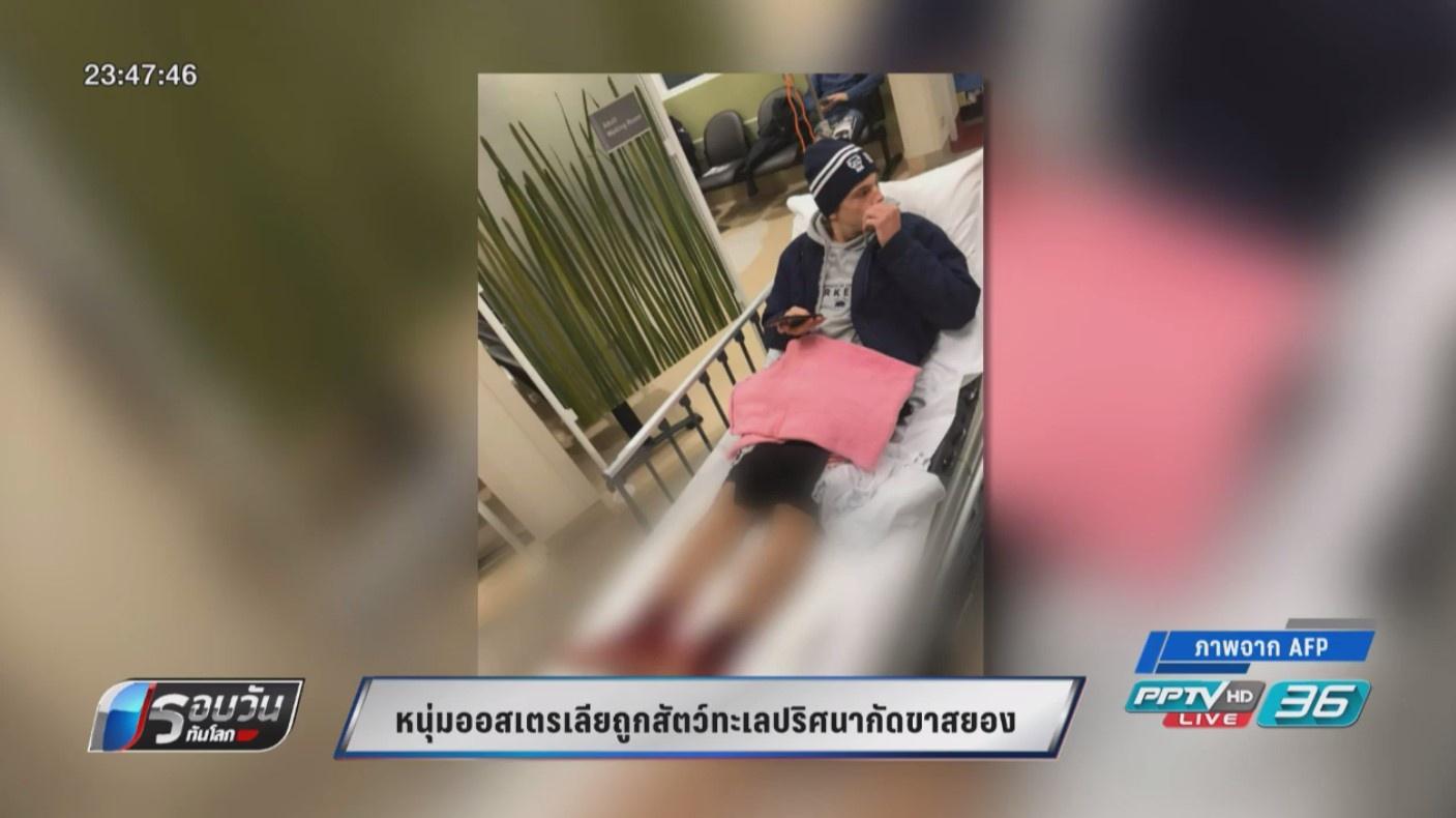 หนุ่มออสเตรเลียถูกสัตว์ทะเลปริศนากัดขา