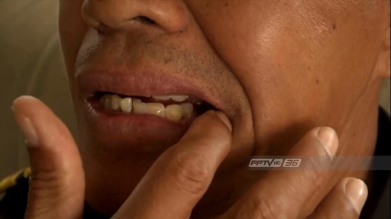 สุดท้ายฟันตัวเอง !! เทศกิจเมืองโคราชยอมรับหลังโวยกินไอติมเจอฟัน