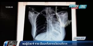 พบผู้ป่วย 4 ราย เป็นมะเร็งจากอวัยวะบริจาค