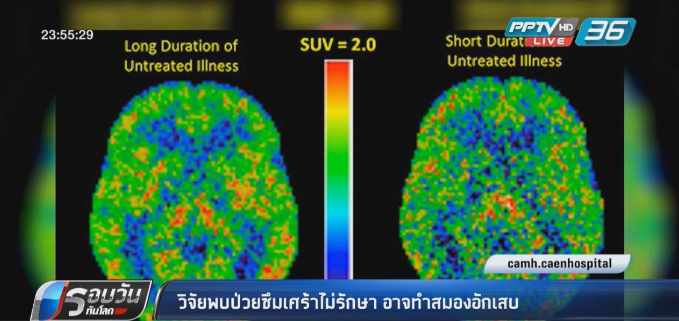"""ผลวิจัยเผย """"ป่วยซึมเศร้า"""" ไม่รักษา อาจทำสมองอักเสบ"""