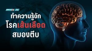 โรคเส้นเลือดสมองตีบ ภัยเงียบเสี่ยงอัมพาต