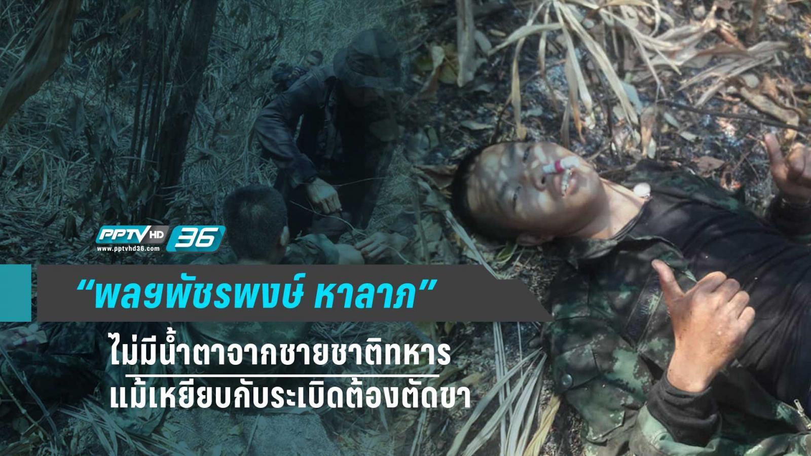 พลฯพัชรพงษ์ หาลาภ : ไม่มีน้ำตาจากชายชาติทหาร แม้เหยียบกับระเบิดต้องตัดขา