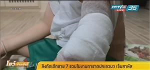 เด็ก7 ขวบถูกลิงกังกัดในงานกาชาดประจวบฯ แผลเหวอะ