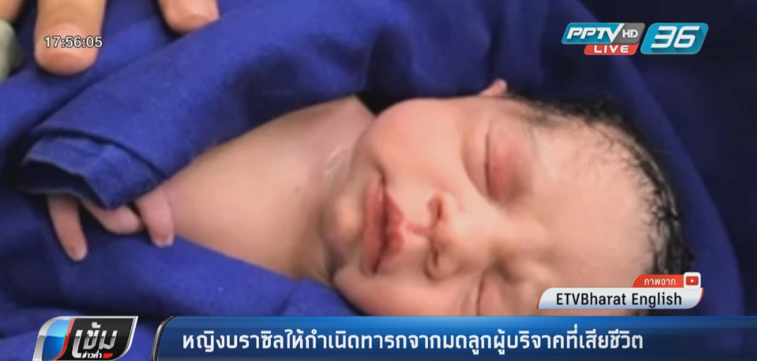 หญิงบราซิลให้กำเนิดทารกจากมดลูกผู้บริจาคที่เสียชีวิต