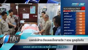 แพทย์เฝ้าระวังแผลเด็กชายวัย 7 ขวบ ถูกสุนัขกัด