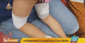 ยาย ร้องหลาน 2 ขวบ ถูกฝูงสุนัขจรจัดรุมขย้ำเลือดโชก กลางสวนสุขภาพ