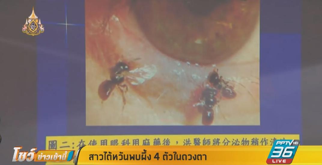 สาวไต้หวันพบผึ้ง 4 ตัวในดวงตา