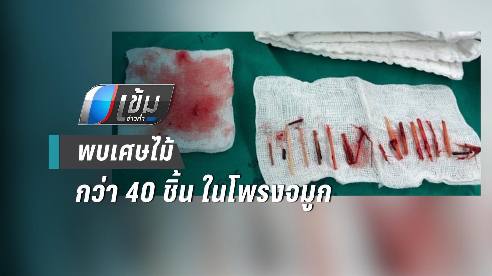 แพทย์ผ่าช่วยชีวิตชายลมหายใจเหม็น พบเศษไม้ในโพรงจมูกกว่า 40 ชิ้น