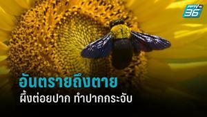 หมอเตือน อย่าใช้ผึ้งต่อยปาก หวังทำปากกระจับ อันตรายถึงตาย