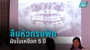 คนไข้จ่อฟ้องปลัดสธ. เหตุหมอลืมหัวกรอฟันในเหงือก 5 ปี สูญเงินรักษานับแสน