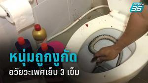 หนุ่มวัย 18 ปี เข้าห้องน้ำถูกงูกัดอวัยวะเพศ เย็บ 3 เข็ม