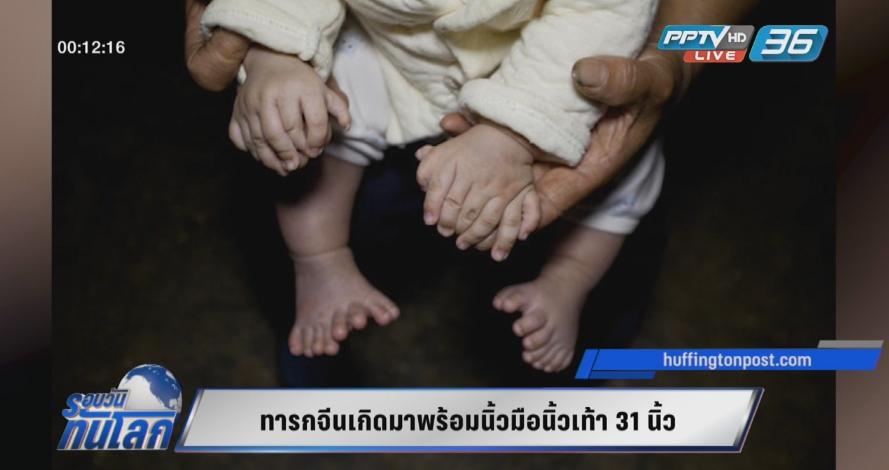 ทารกจีนเกิดมาพร้อมนิ้วมือนิ้วเท้า 31 นิ้ว (คลิป)